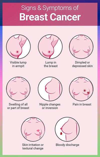 جراحی سرطان سینه 1