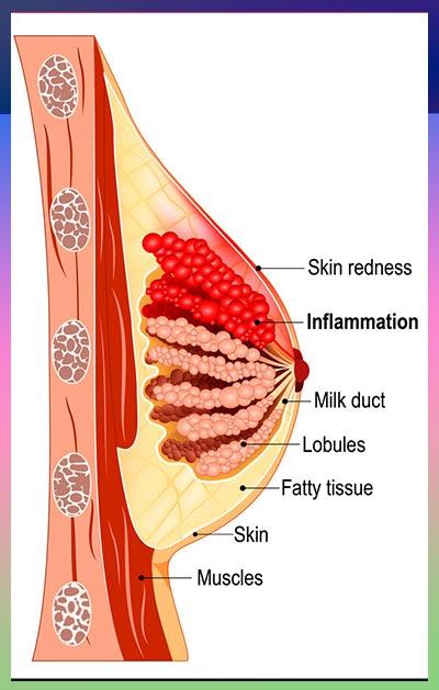 جراحی سرطان سینه 2