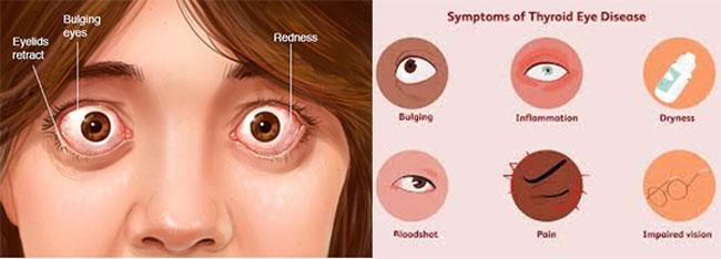 تیروئید چشم 1