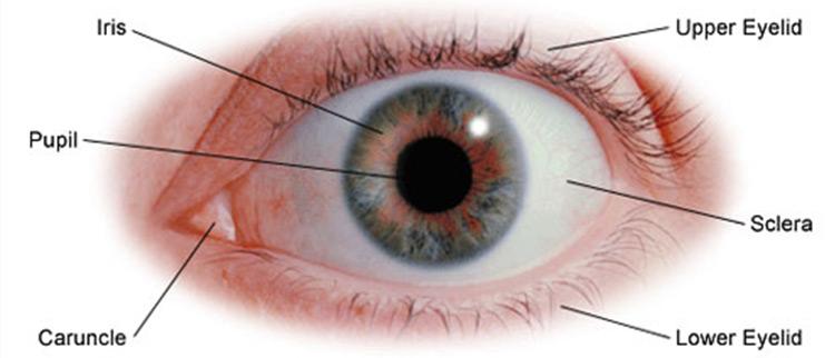جراحی تومور حدقه چشم 1