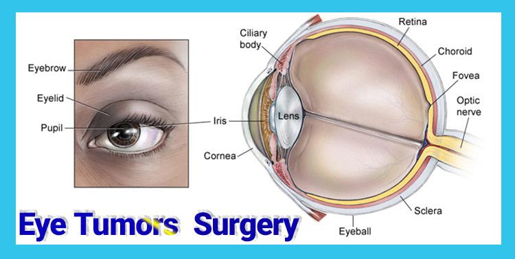 جراحی تومور چشم