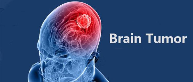 جراحی تومور مغز