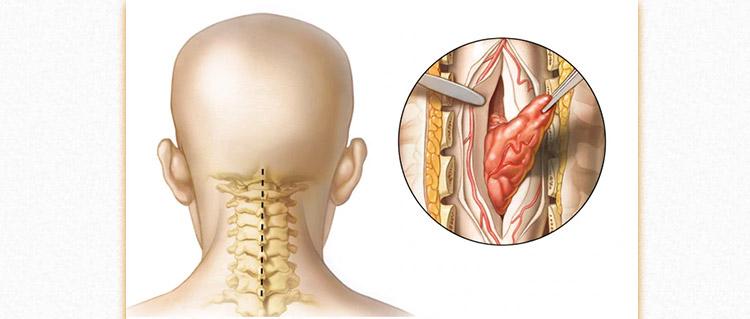 جراحی تومور گردن 1