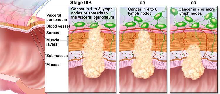 جراحی سرطان روده