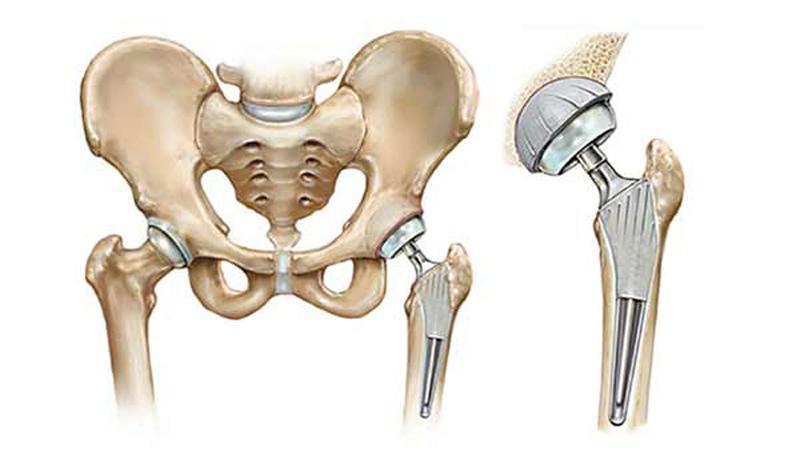 جراحی تعویض مفصل لگن و ران